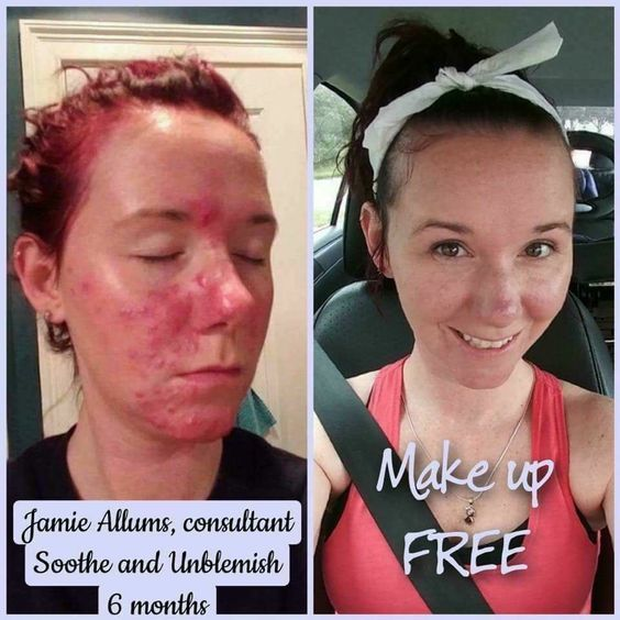 Amazing skin or your money back, guaranteed! Contact me at valnfath@gmail.com or shop online at https://valnfath.myrandf.biz/ #rodan+fields #randf #rodanandfields