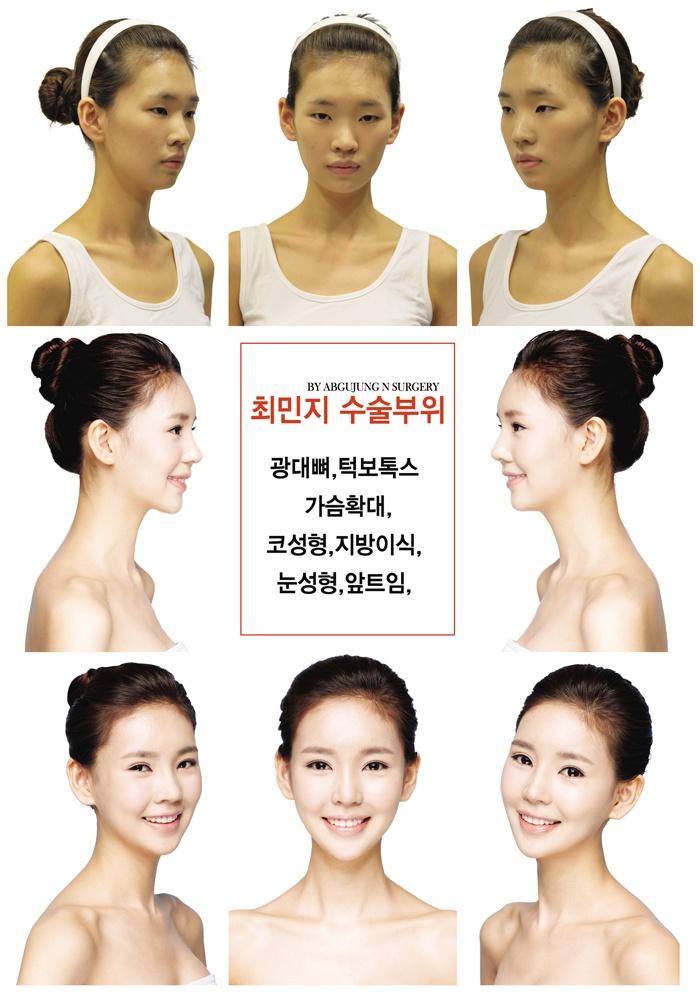29 Best Korean Plastic Surgery Images On Pinterest -2026