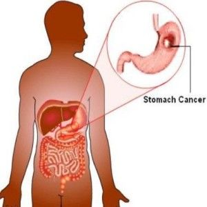 Top 11 Natural Cures For Stomach Cancer