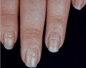 Ridges in your nails can point to larger problems, like thyroid disease.  Via LifeExtension
