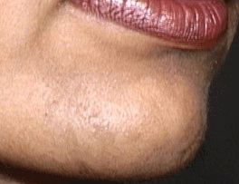 How to Get Rid of Female Chin Hair by Dr Khurram in English - Urdu