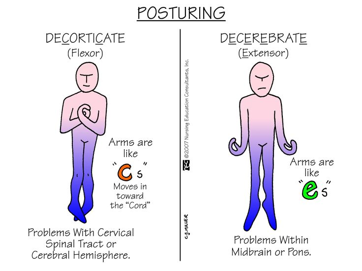 Posturing | Nursing Mnemonics and Tips... this website is awesome!!! All nursing students and nurses should check it out