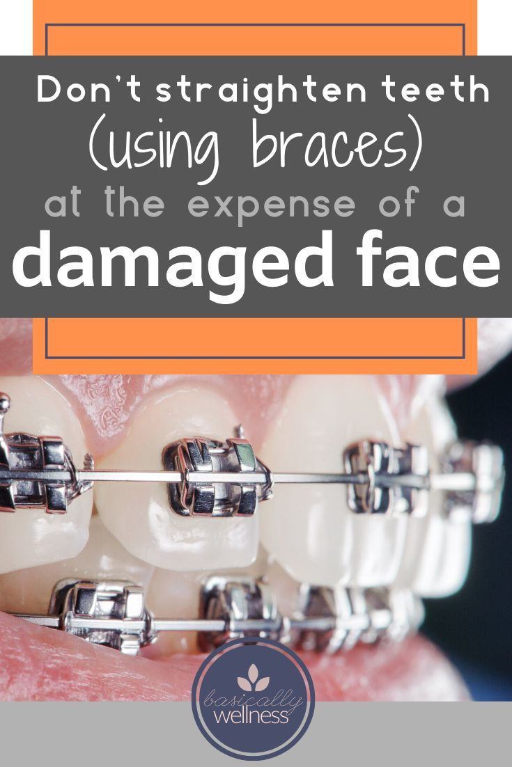 Don't Straighten teeth using braces at the expense of a