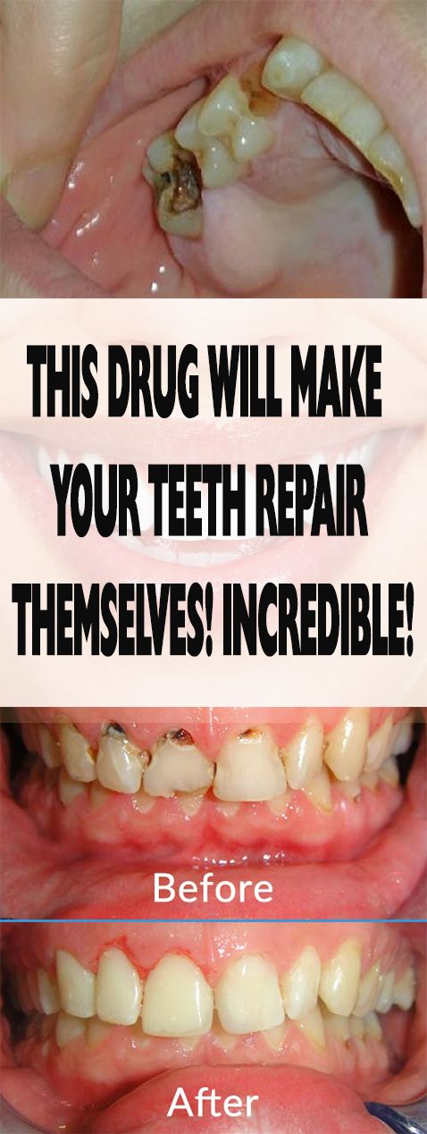 THIS DRUG WILL MAKE YOUR TEETH REPAIR THEMSELVES! INCREDIBLE! #fitness #beauty #hair #workout #health #diy #skin #Pore #skincare #skintags  #skintagremover  #facemask #DIY #workout #womenproblems