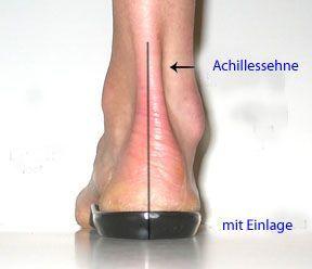 Fersensporn, Fersenschmerzen - Ursachen und Hilfe   die-fussexperten.de