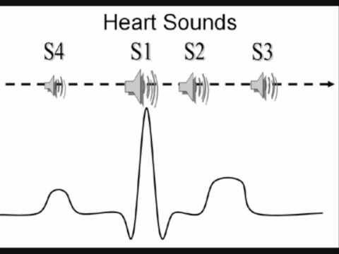 third heart sound s3