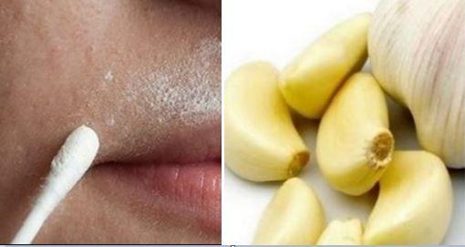 Ces astuces vous permettront de vous débarrasser des poils du visage facilement et sans douleurs