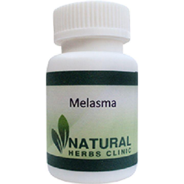 17 best ideas about melasma treatment on pinterest melasma cures facial masks and dark spots. Black Bedroom Furniture Sets. Home Design Ideas