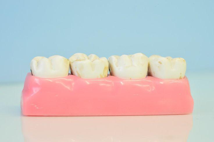 Už žádné výplně od zubních lékařů, odhalíme nové ošetření pro zubní kámen