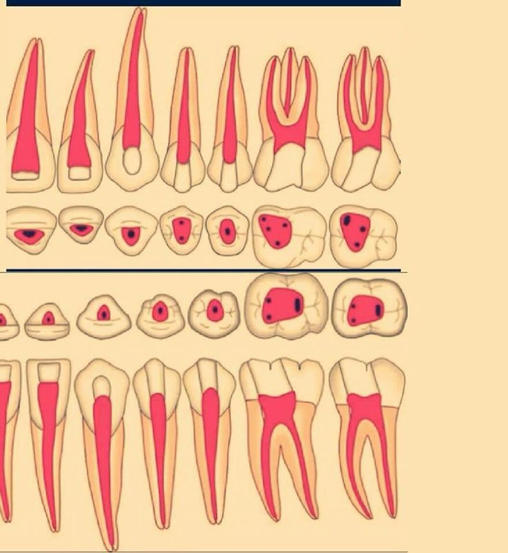 Trepanación/Endodoncia