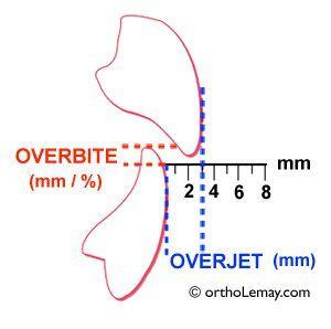 Définition de Overbite et overjet pour décrire une malocclusion dentaire en orthodontie. orthodontiste Sherbrooke Lemay