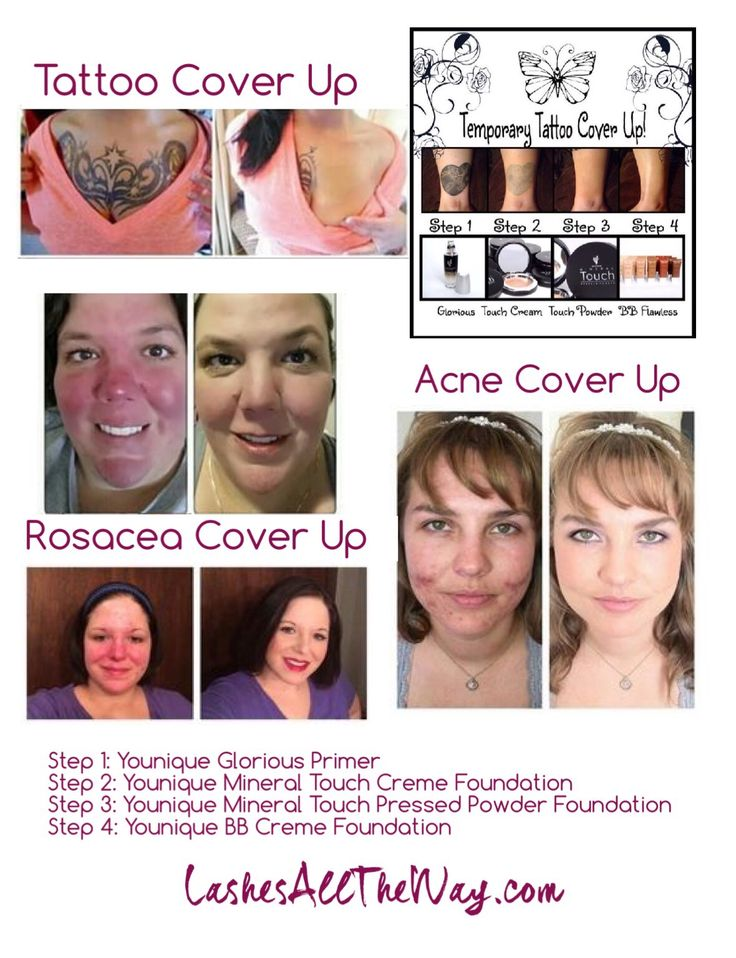 Do you have, scars, acne, birthmarks, rosacea or tattoos
