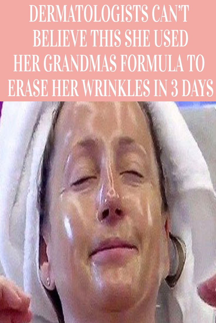 Dermatologists Can T Believe This She Used Her Grandmas Formula To Erase Her Wrinkles In 3 Days Medical Jokes Medical Mnemonics Medical Esthetician