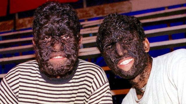People with hair all over their bodies | DEFORMED ANIMALS ...