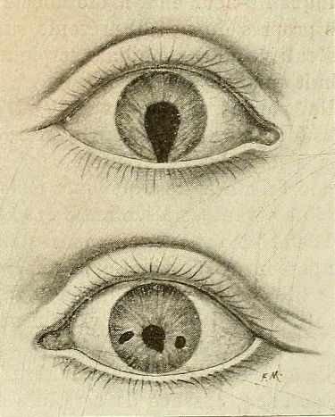 Best Ophthalmology Oldies Images On Pinterest Medical - Syphilis map us circa 1700s