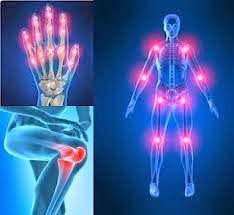 Además de ser las articulaciones de las manos las de mayor compromiso, las del resto del reto del cuerpo se ven comprometidas sin mayor deformidad.