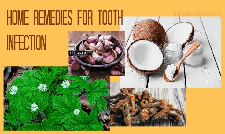 How To Naturally Treat Toothache And Tooth Infection