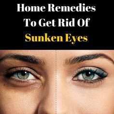 Due to high stress levels, many people have are now prone to getting sunken eyes. However, there are some effective home remedies to treat sunken eyes. Have a look.