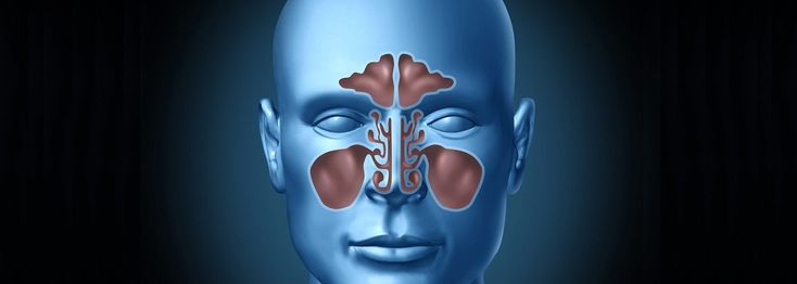 NATURAL CURE FOR SINUS INFECTIONS