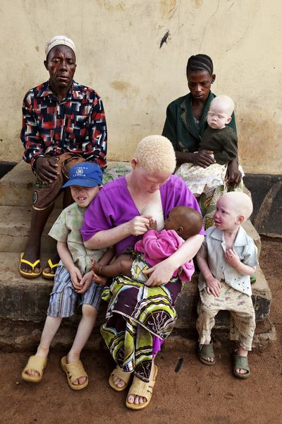 "Africa | ""White Shadows"" ~ Shining a Light on Tanzania's Albinos 
