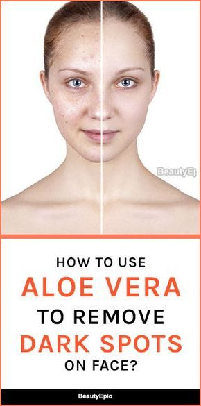 How to Use Aloe Vera to Remove Dark Spots on Face?