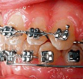#orthodontie #beugels Je tanden hebben achteraf steun nodig. Dan gebruiken wij retentie beugels. Na de #beugel behandeling