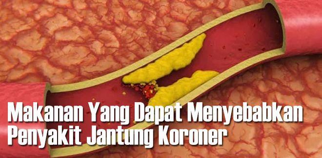 Waspadai 6 makanan penyebab penyakit jantung koroner