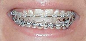 ArchWired: A website for adults with dental braces and retainers on their teeth. - (What Are Power Chains)