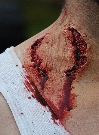 Zombie bite makeup.