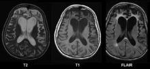 Cerebral atrophy - Wikipedia, the free encyclopedia