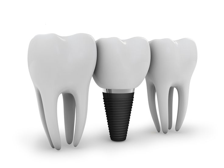 Did you know that dental implants cost less in the long run? Dental implants cannot ever get a cavity and usually last a lifetime. #FrandsendDental