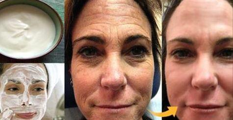 Ešte nedávno vyzerala vaša pokožka skvele, teraz sa na nej pomaly objavujú vrásky? Máme pre vás jednoduchý recept, vďaka ktorému minimalizujete prejavy starnutia… Suroviny je ľahké zohnať a už po prvom použití sa dostavia výsledky. Samozrejme, masku nanášame na vopred umytú tvár. Niektoré ingrediencie môžu spôsobiť alergickú reakciu, preto ak ste citlivý napríklad na med …