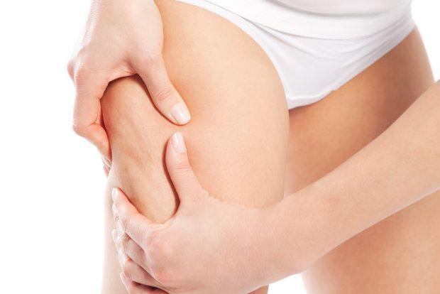 Nadmiar tkanki tłuszczowej może być zlokalizowany w obrębie różnych partii ciała. W wypadku mężczyzn najczęściej jest to brzuch, a w przypadku kobiet - pośladki, biodra i uda. Niezależnie jednak od płci: nadmiar tkanki tłuszczowej jest z pewnością problemem estetycznym zwłaszcza wtedy, gdy rozłożona jest ona nieproporcjonalnie.