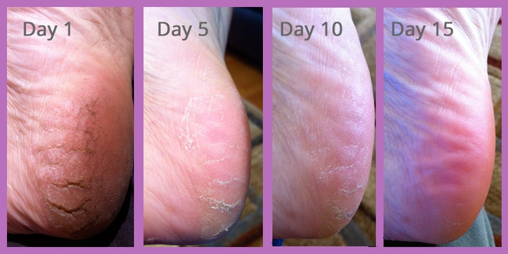Amazing! Once nightly application of Satin Serum under SkinCerity breathable mask and sore cracked heels are gone in 15 days!