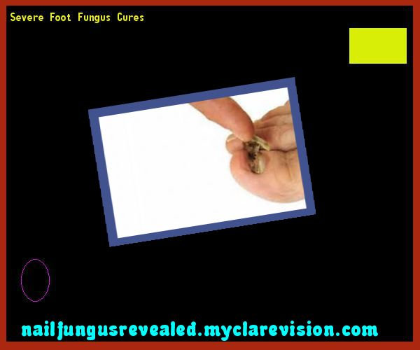 Severe foot fungus cures - Nail Fungus Remedy. You have nothing to lose! Visit Site Now