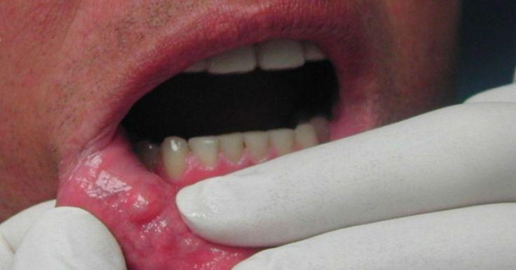Καρκίνος του στόματος: Προσοχή στα «αθώα» συμπτώματα – Ποιοι είναι οι παράγοντες κινδύνου Crazynews.gr