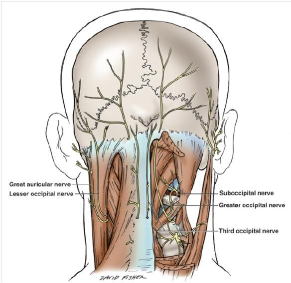 The 30 best Occipital Nerve Block images on Pinterest | Occipital ...