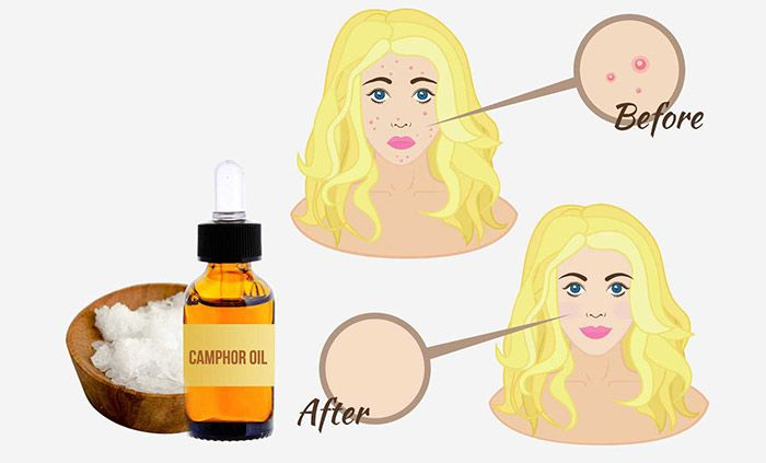Apart from its distinctive aroma, camphor is known for its medicinal properties. Yatra Blog, Crystalline Substance, Green Yatra, Camphor Oil, Distinctive Aroma, Medicine Property, Treats Acne, Camphor Trees