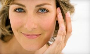 Groupon - 20 or 40 Units of Botox with Optional Syringe of Juvéderm at MI Body Contour (Up to 73% Off)   in Dearborn. Groupon deal price: $129