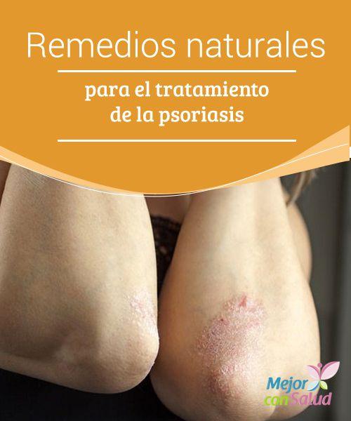 Remedios naturales para el tratamiento de la psoriasis  La psoriasis es una enfermedad crónica de la piel que se desarrolla cuando las células se acumulan en la superficie de la dermis y forman placas o parches rojos y gruesos, que pueden causar mucha picazón y dolor si se vuelven demasiado grandes.