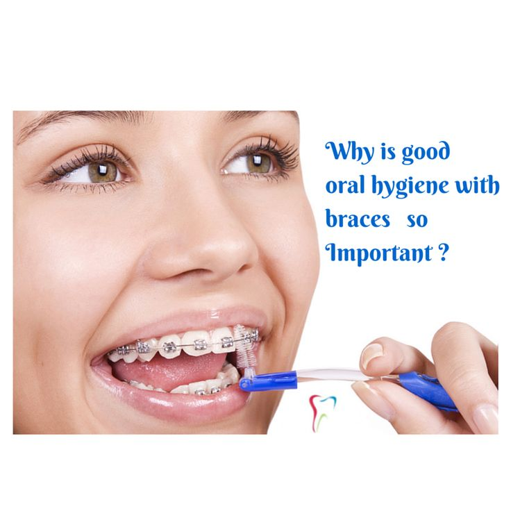 Keep Up #Oral Care While You Wear Braces.It is best to brush after every meal and use a floss threader or special #orthodontic floss at least once a day to clean between braces and under wires because food and plaque can get trapped in the tiny spaces between braces and wires.