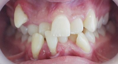 Tired Of Crooked Or Crowded Teeth? - Vibrant Smiles Mableton GA ...