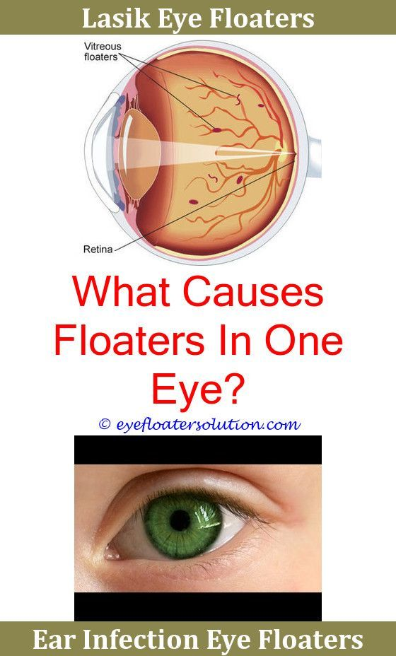 what do black floaters in the eye mean
