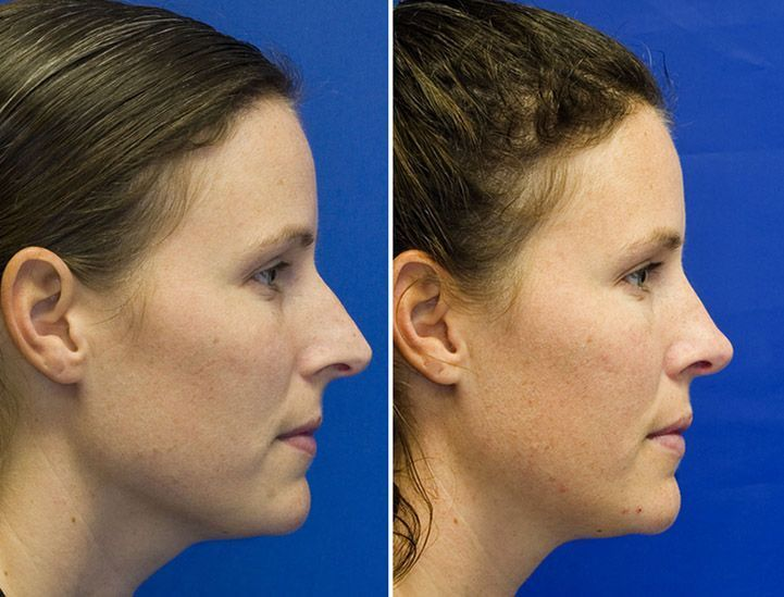 #rhinoplasty #vancouver #surgery #patient #photos #bef
