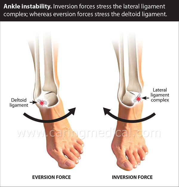 Ankle Ligament Instability can lead to chronic ankle pain and sprain. Prolotherapy to the injured area strengthens the supporting structures and eliminates the pain and excess motion.