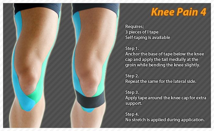 30 Best Kt Tape Images On Pinterest Kinesiology Taping Dressing And Band