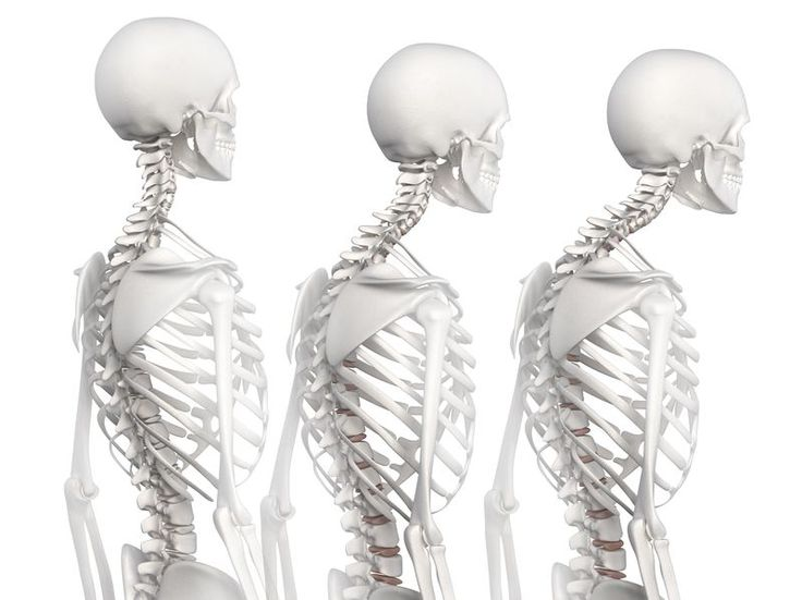 How to Improve Posture:In this issue, the 4 best upper back exercises to improve your posture to give you the confidence you need: Toronto Chiropractor