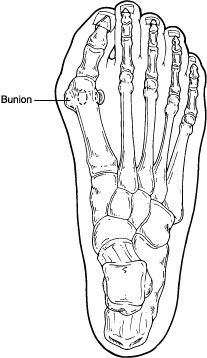 A bunion is a bony enlargement on the inside of your foot on the big toe joint. A bunion can be very painful and irritated by ill-fitting shoes and poor foot mechanics. At Connecticut Foot Care Centers, we diagnose and treat all types of bunions.