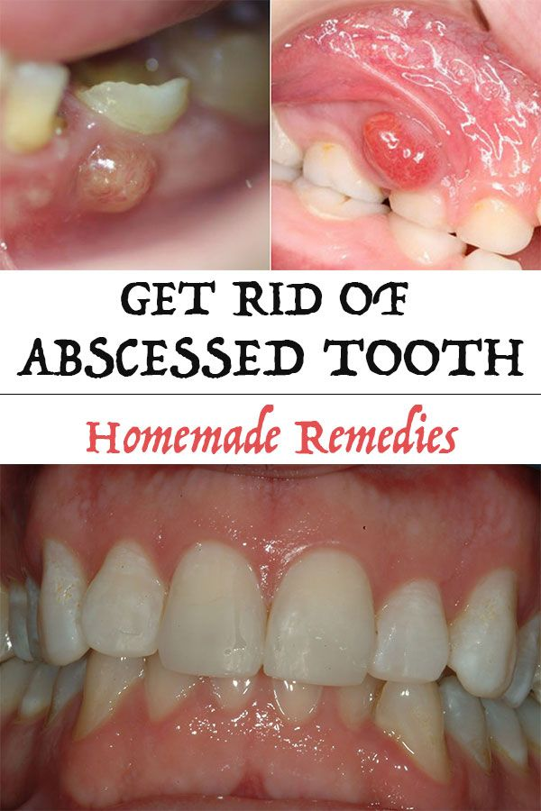 Dental abscess is quite painful and may even cause gingivitis. We recommend you to go see a doctor first. But you should know that there are also several natural remedies that can help in the treatment of dental abscess or at least relieve symptoms and reduce teeth infection.