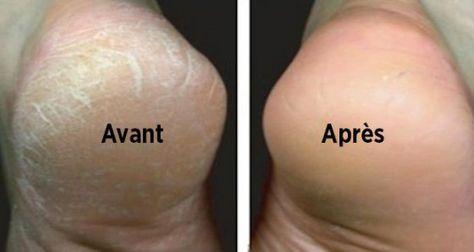 Le bicarbonate de soude pour traiter les pieds secs et fendillés. Adieu pieds secs et callosité avec le bicarbonate. Un remède naturel pour des pieds lisses L'hiver est terminé et si vos pie…